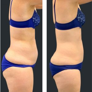 Before and after Cooltech fat freezing tummy.