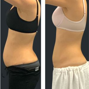 Before and after cooltech fat freezing