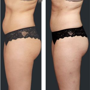 Before and after fat freezing tummy