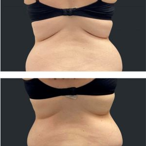 Before and after fat freezing bra roll