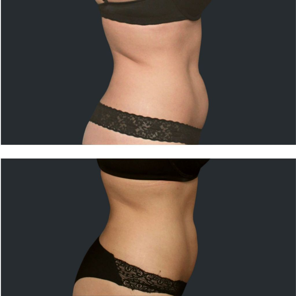 Before and after Cooltech Tummy