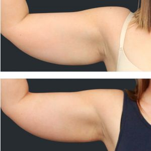 Before and after Cooltech upper arm.