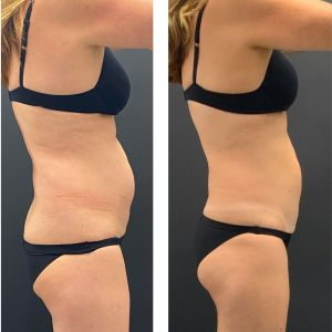 Before and after Cooltech tummy.