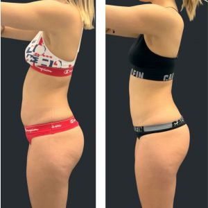 Before and after fat freezing tummy.