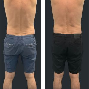 Before and after Cooltech love handles