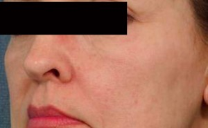 Broken Capillaries Treatment | Laser, diathermy & IPL for broken