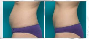 2 cool tech to lower abdomen.