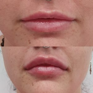 Lip Injections Brisbane | Lip Fillers for Cosmetic Lip