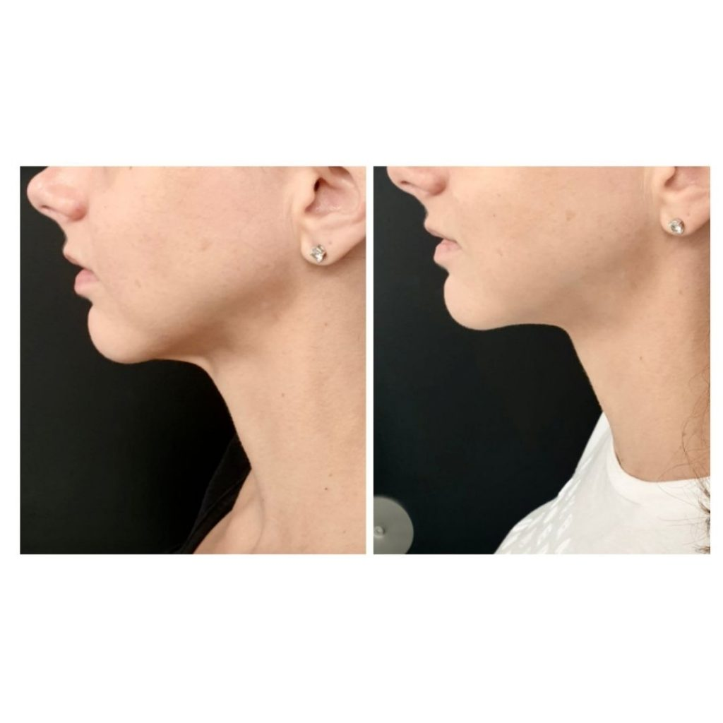 12 weeks after PDO thread lift neck.
