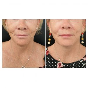 12 weeks post PDO thread lift, lower face.