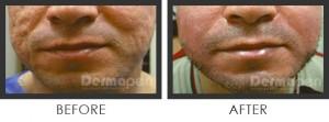 acne scar removal dermapen
