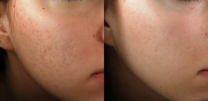 acne scar treatment before 3