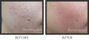 acne scar treatment with dermapen