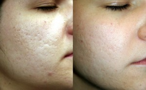 acne scarring before