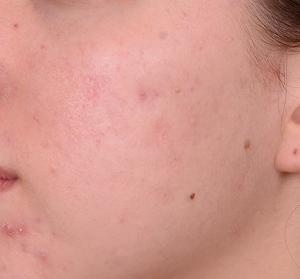 Facials Brisbane, Specialist Acne Extraction Facial