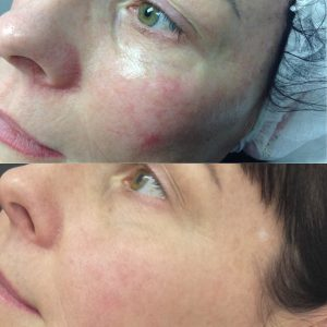 Broken Capillaries Treatment | Laser, diathermy & IPL for