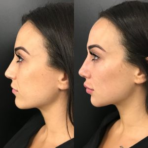 Dermal Cheek Fillers | Cheek Injections & Facial Threads for