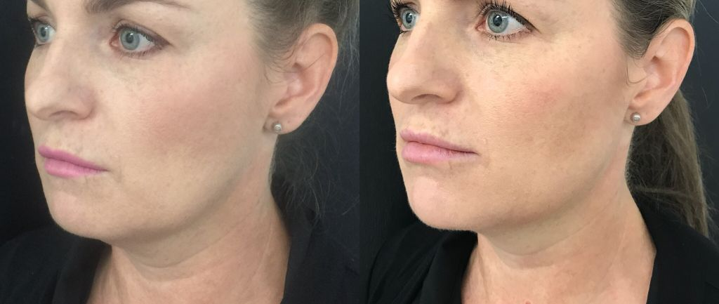 Before and after jaw filler, cheek and chin filler.