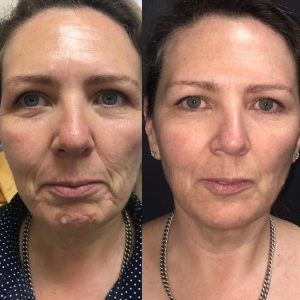 Chin Fillers To Reshape a Receding or Weak Chin and