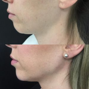 before and after weak chin filler and jawline filler