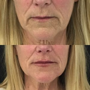 Chin filler before and after alongside upper wrinkle line treatment