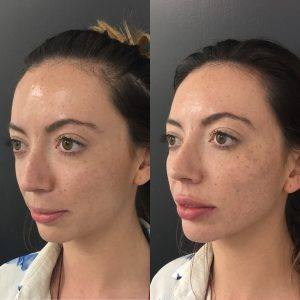 Profile of before and after fillers for weak chin, lip and cheeks