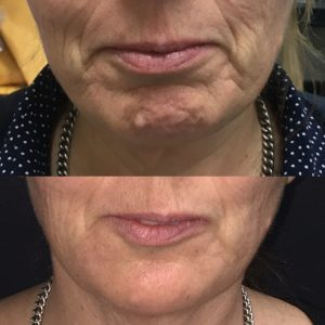 Chin Fillers To Reshape a Receding or Weak Chin and Marionettes Lines