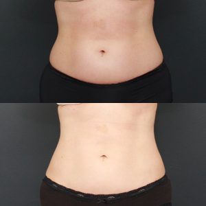 Focalin xr weight loss adults picture 9