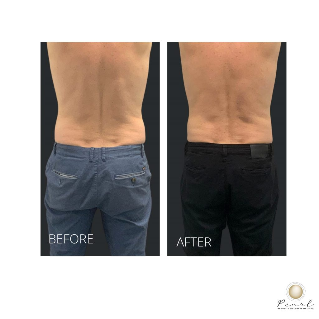 before and after coolsculpting flanks