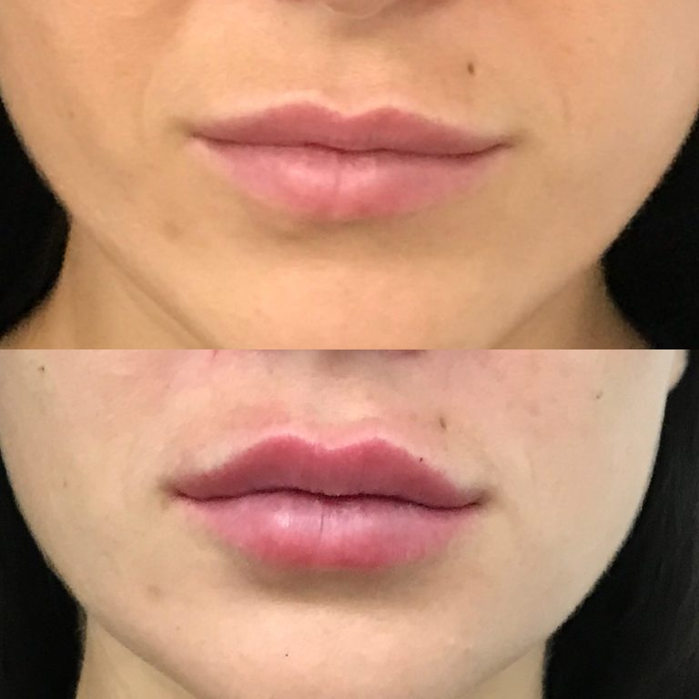 Dermal fillers brisbane face fillers filler injections and lip fillers solutioingenieria Gallery
