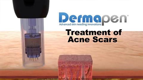 dermapen for acne scarring
