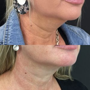 Double Chin Removal   Double Chin Injection, Liposuction & Fat Freezing
