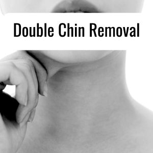 Double-chin Removal