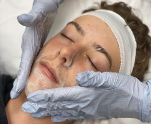 Cleansing before extraction facial begins.