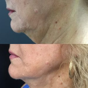 Neck and jowl thread lift before and after picture.