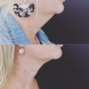 Double Chin Removal | Double Chin Injection, Liposuction