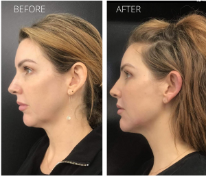 before and after image of a lady that has filler in her jawline