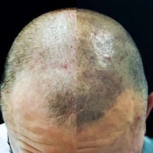 Hair Tattoo For Baldness Scalp Micropigmentation And Hairline Tattoo