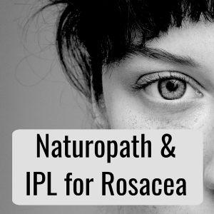 IPL for Rosacea