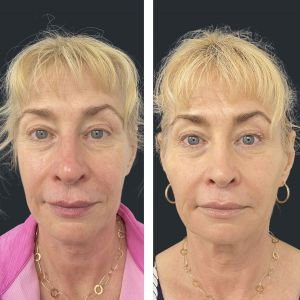 Chin filler, jawline, cheek, nasolabial fold and upper lip wrinkles fillers.