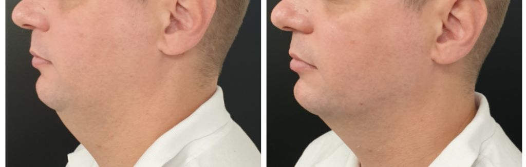 Chin and Jawline filler before and after in men.