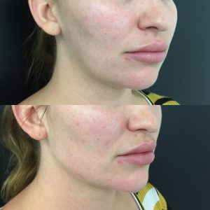 Jawline filler before and after creating parallel lines to cheeks.