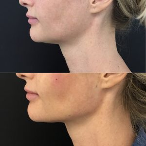 Before and after chin and jawline filler.
