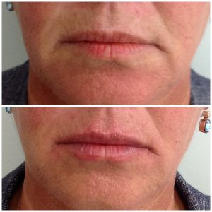 lip injections brisbane
