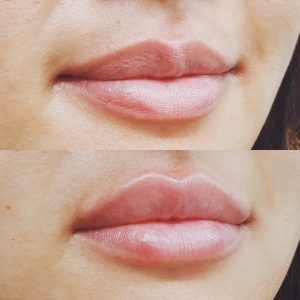 Lip Injections Brisbane | Lip Fillers for Cosmetic Lip Enhancement