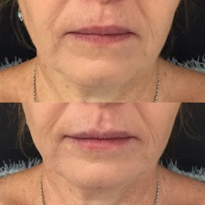 Before and after chin filler for marionette lines and lip filler