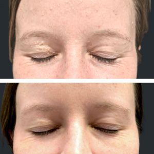 Before and After Milia extraction facial.