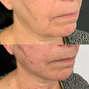 Before and after thread lift for jowl lift.