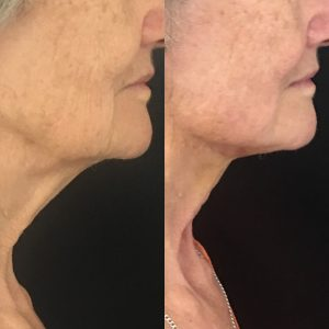Before and after neck thread lift.