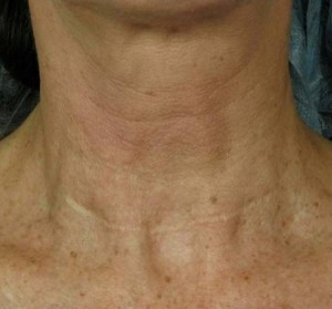 How to treat neck wrinkles